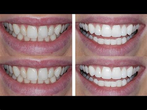 diy dental bonding teeth bonding teeth bonding procedure how to save