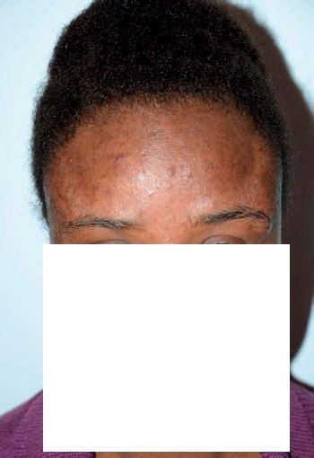 hairline lowering african american women image