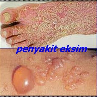Obat Eksim Basah pengobatan herbal terpercaya obat gatal eksim basah pada