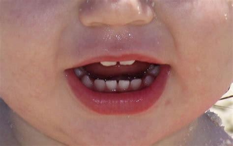 cuando le salen los dientes a los bebes 191 cu 225 ndo les salen dientes a los beb 233 s