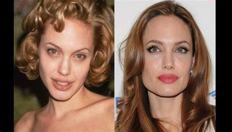 375 best images about celebrity plastic surgery on pinterest rinoplastia antes y despu 233 s 03 jpg 924 215 530 every woman