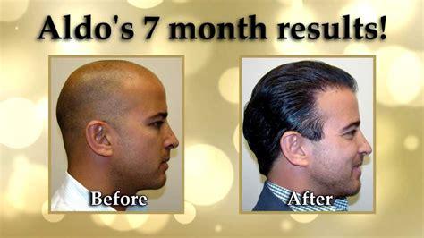 dr brett bolton license dr brett bolton license dr brett bolton hair transplant