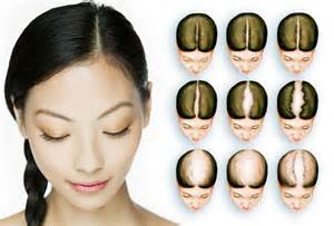 women s hair loss pictures thinning hair causes