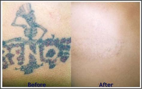 permanent tattoo removal cost 14 best before and after images on el paso