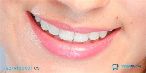 precios de fundas dentales 191 qu 233 es una corona dental tipos y precios de fundas dentales