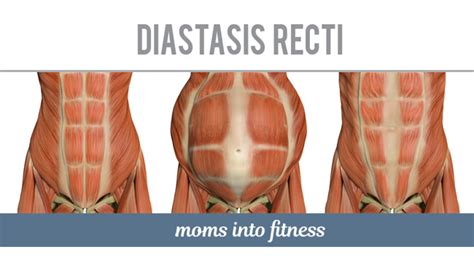 diastasis recti do s don ts during pregnancy two specific exercises