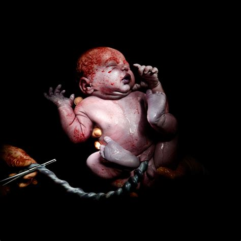 life after c section christian berthelot cesar takes a look at the first few