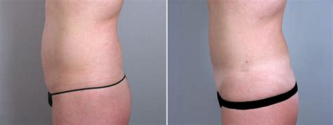 liposuction during c section 301 moved permanently