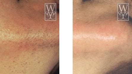 laser tattoo removal baton rouge laser hair removal baton remove hair gonzales