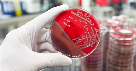bacteriology section food testing lab in south africa food safety consultants
