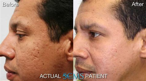 july 2013 acne scar removal results male patient before