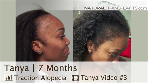 hair transplant for black women best female hair transplant before and after hair loss