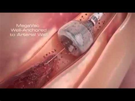 Ring Stent Karakter 3d Berkualitas angiogram doovi