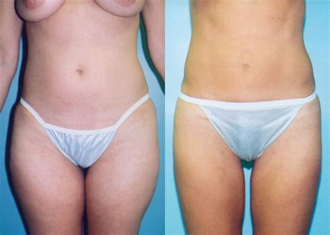 c section and tummy tuck uk lipo after c section 28 images tummy tuck modern