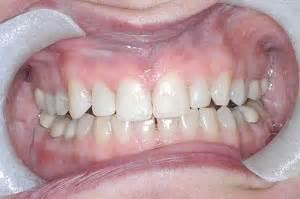 bonding specialists dr seluk dds dental implants