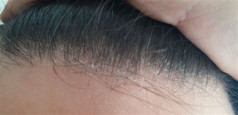 croste in testa cause dermatite seborroica cause e rimedi il mio taglio