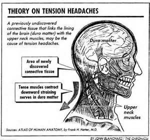 neck pain head ache picture 1