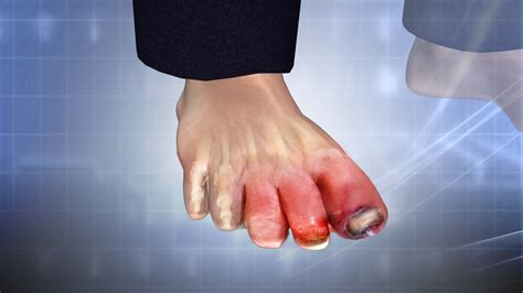 swollen toe swollen toe treatment causes symptoms