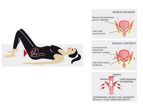 ginnastica pavimento pelvico riabilitazione pavimento pelvico galeno fisioterapia