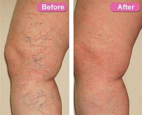 spider veins on the legs treatments home remedies for spider veins oshey sneh