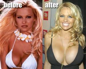 Pamela anderson before and after plastic surgery breast implants
