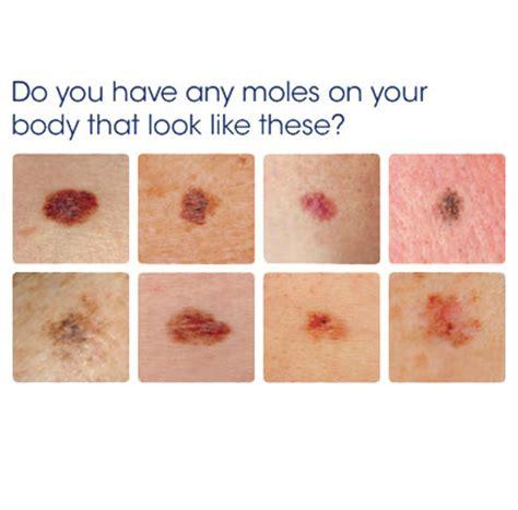 melanoma in testa herpes virus possible cure for melanoma the gazette review