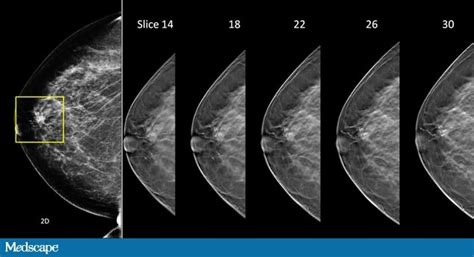 Improving mammography based imaging for better treatment planning