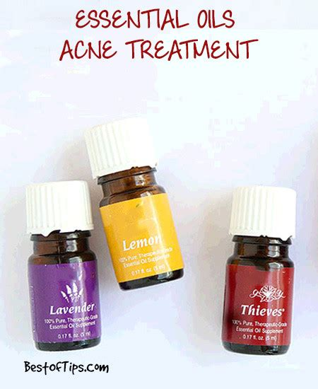 Treating Acne With Essential Oils by Acne Spot Treatment Using Essential Oils Bestoftips
