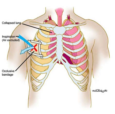 chest diagram muscle diagram models picture