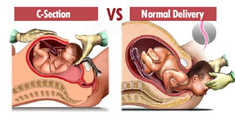 normal life after c section natural birth vs c section fast facts on the differences