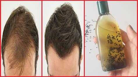 kalonji for hair growth ग ज स र पर फ र स ब ल उग न क ल ए इस तरह बन य कल ज