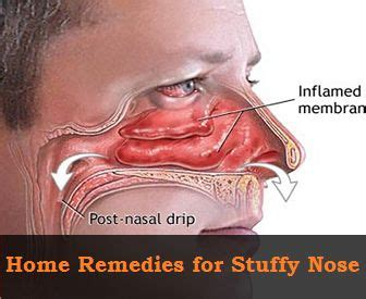 home remedies for stuffy nose 232 best images about health on flu diarrhea