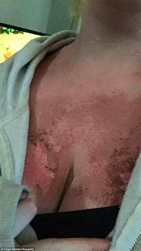 banana boat sunscreen article taryn hawken claims sunburn was caused by faulty banana
