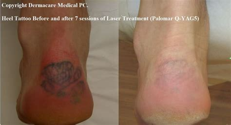 tattoo removal procedures 13 best removal prices images on