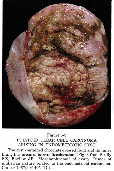 tumor pictures pathology outlines clear cell adenocarcinoma