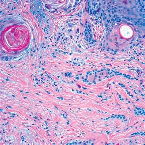 Basal Cell Carcinoma Skin Pathology Outlines by Pathology Outlines Trichoepithelioma