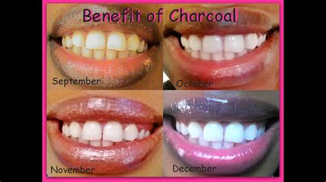 naturally whiten teeth instantly cha chingg update