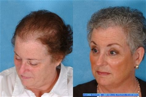 balding sides in wonen turned into a short hair cut female hair transplant bauman medical group