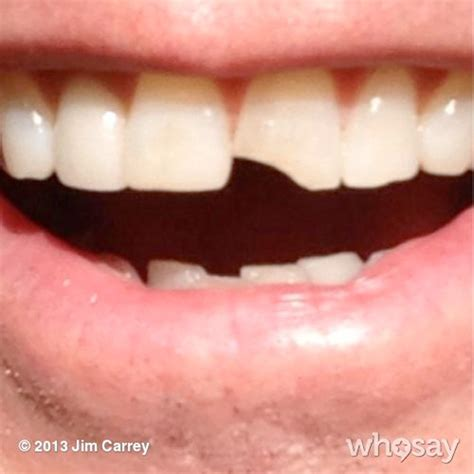 how much to chip a how much to fix a chipped front tooth f f info 2017