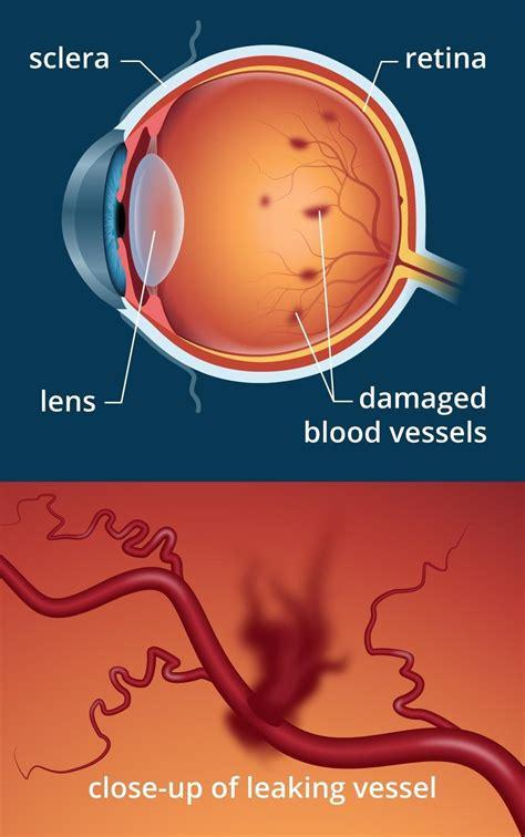 diabetes  blurry vision   eye