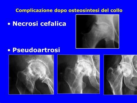 operazione emorroidi interne emorroidi