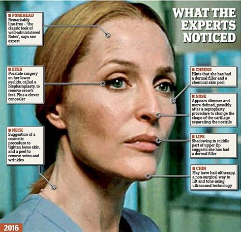 How To Get Lad Like David Duchovny by X Files Gillian Says Plastic Surgery Had