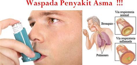 informasi kesehatan  penyakit asma