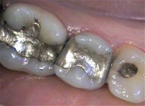 How To Detox Metals With Metal Fillings Still In by Heavy Metal Poisoning How To Detoxify With These 2