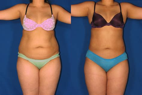 lipo light vs coolsculpting laser lipo local anesthesia before after rejuve med spa