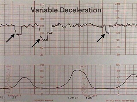 pattern variables quizlet electronic fetal heart monitoring