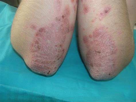 is pic psoriasis the skin what condition new psoriasis psoriasis causes symptoms treatment psoriasis