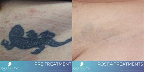 effective tattoo removal the 1 choice for safe effective laser removal