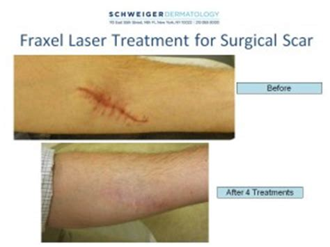 best treatment for surgical scars laser surgery rosacea acne hpv treatment laser surgery