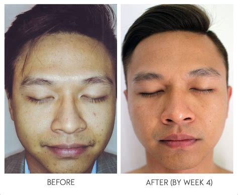 light rx before and after derma rx skincare does it work hommes men s fashion